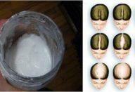 bicarbonato-de-sodio-shampoo-ele-vai-fazer-seu-cabelo-crescer-impressionante-430×285