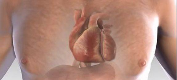 ataque_cardiaco_-_novo_ed