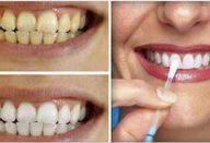 dentes_-_babosa (1)