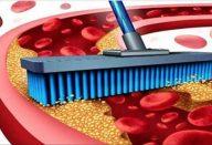 arterias_-_colesterol_-_novo