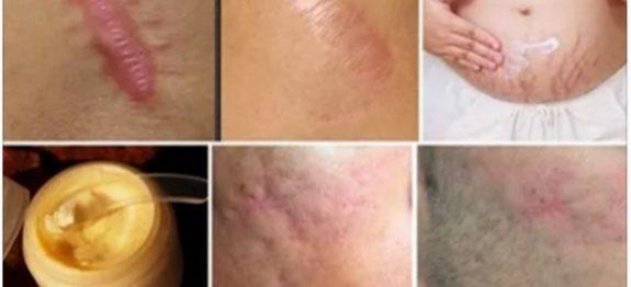 cicatrizes (1)